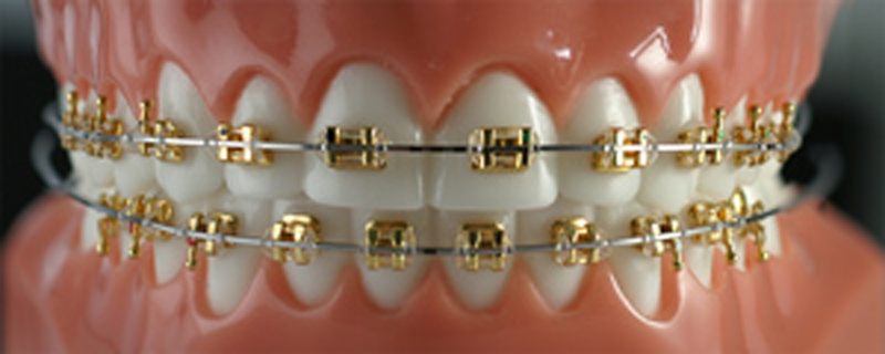 Types Of Braces Dr Kendall J Barrowes Orthodontics