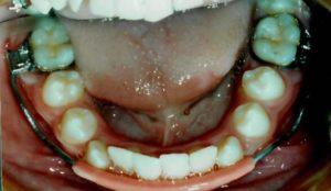 Appliances | Dr  Kendall J  Barrowes Orthodontics